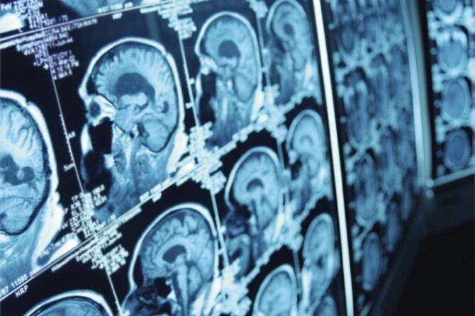 Pregledi neurohirurga